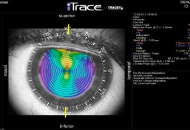 Aberrometria ocular