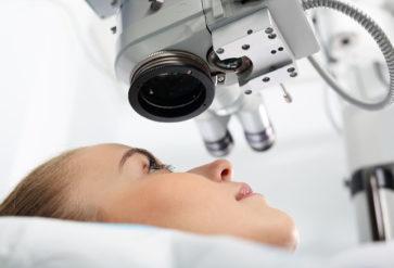 Cirurgia Refrativa – Excimer laser